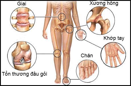 Calcium và phòng chống loãng xương ở mọi lứa tuổi